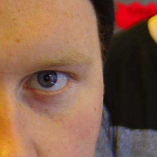 SuperGlu Chip Eye